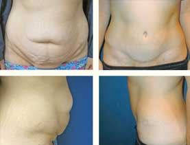 BEFORE & AFTER: Panniculectomy #7 surgery performed by Dr. Melissa Johnson