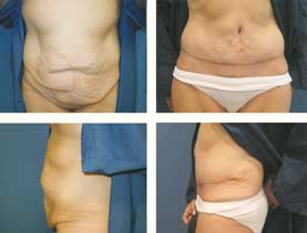 BEFORE & AFTER: Panniculectomy #8 surgery performed by Dr. Melissa Johnson