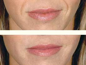BEFORE & AFTER: Nasolabial folds treated with 3 mL of Restylane #1