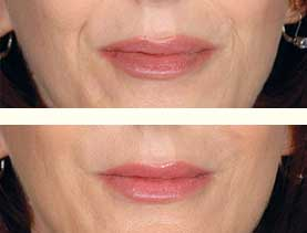 BEFORE & AFTER: Nasolabial folds treated with 3 mL of Restylane #2