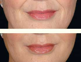 BEFORE & AFTER: Nasolabial folds treated with 3 mL of Restylane #3