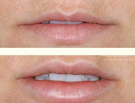 BEFORE & AFTER: Lips treated with 3.4 mL of Restylane (includes initial and touch-up treatments).