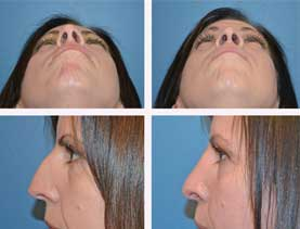BEFORE & AFTER: Rhinoplasty surgery performed by Dr. Melissa Johnson