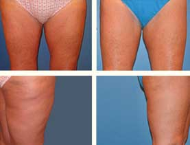 BEFORE & AFTER: Thigh lift #3 surgery performed by Dr. Melissa Johnson