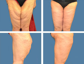 BEFORE & AFTER: Thigh lift #2 surgery performed by Dr. Melissa Johnson