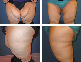 BEFORE & AFTER: Thigh lift #1 surgery performed by Dr. Melissa Johnson